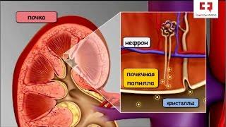 Камни в почках: виды камней, этапы формирования, факторы риска мочекаменной болезни и профилактика
