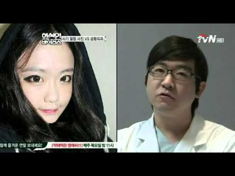 Gangnam Style Top Plastic Surgery Best Before And After