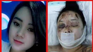 Download Video Rindoe puspita korban laka sarangan akhirnya meninggal dunia.. MP3 3GP MP4