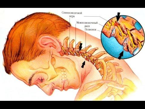 Чем опасен шейный остеохондроз: проблемы, их признаки и