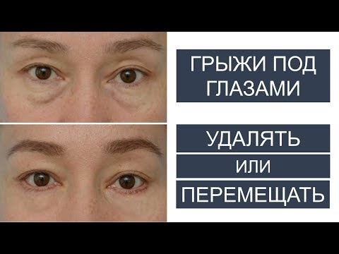 Грыжи под глазами: УДАЛЯТЬ или ПЕРЕМЕЩАТЬ?
