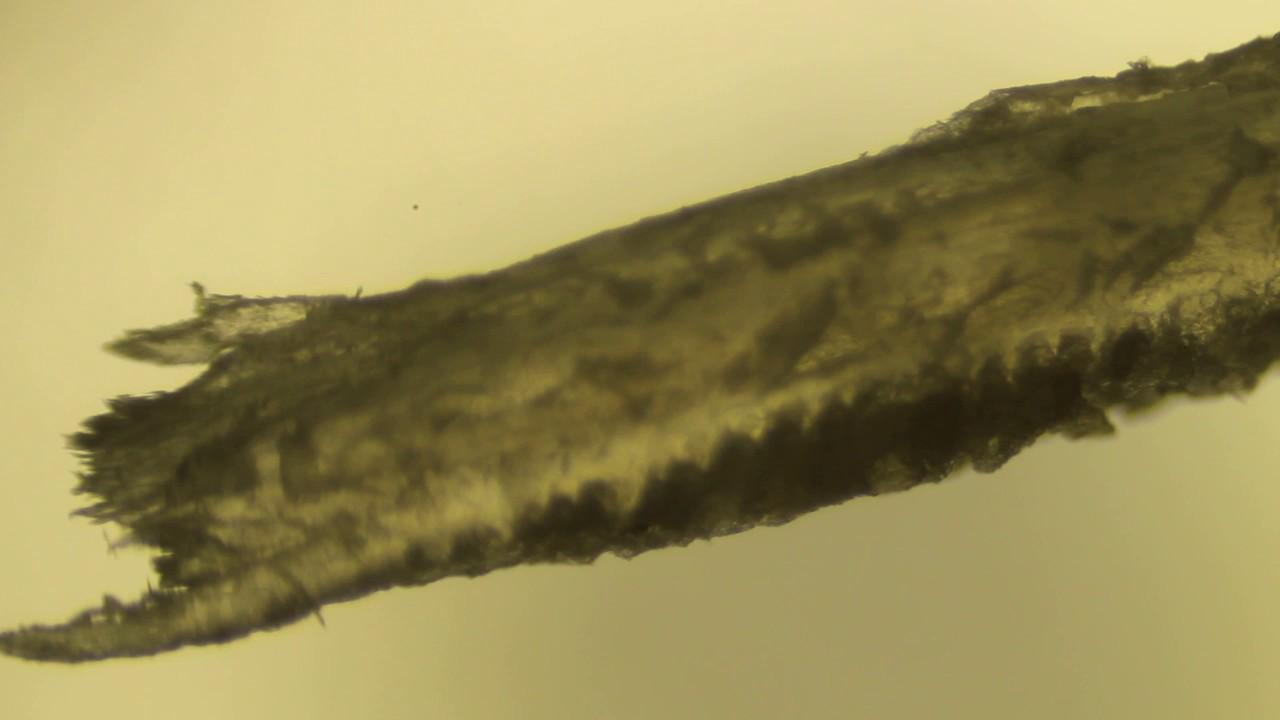 Фото человеческого ногтя под микроскопом
