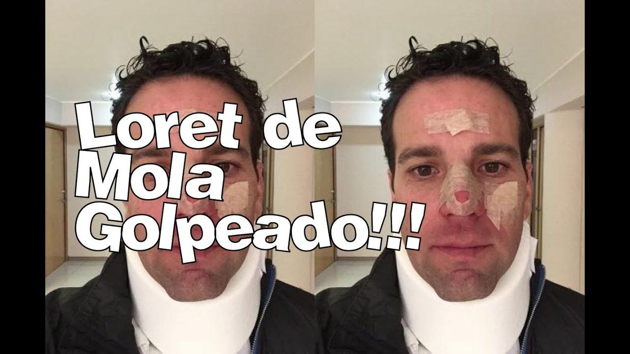 Accidente Carlos Loret De Mola Golpeado No Quiere A Su