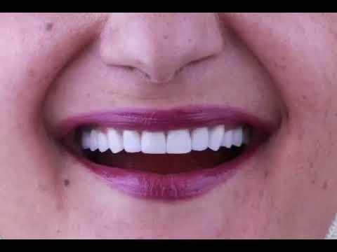 hollywood smile done by dr sura amman jordan
