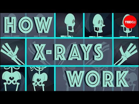How X-rays see through your skin - Ge Wang