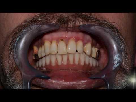 Имплантация зубов отзывы, виды и цены, какие зубные