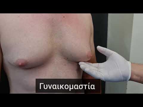 #gynecomastia #γυναικομαστια #πλαστικοςχειρουργος #plasticsurgery