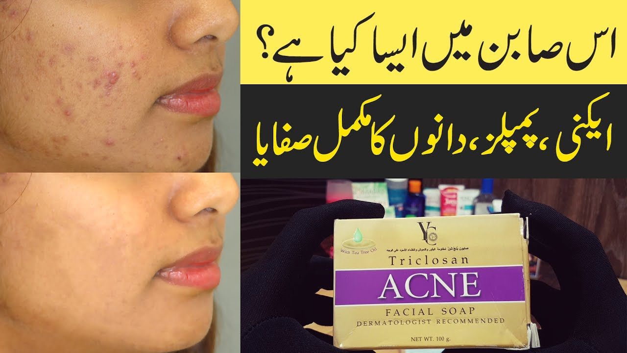 Remove Acne Overnight Pimple Treatment 100 Homemade Solution