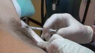 Botox at Woodford Medical Essex for Excessive Sweating thumbnail