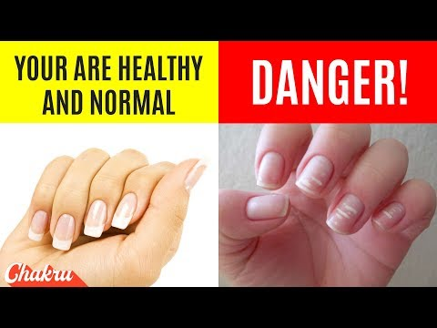 22 Health Warnings Your Finger Nails Are Sending You Everyday