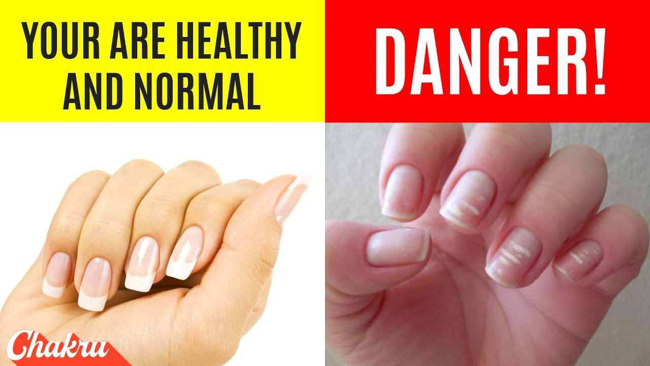 22 Health Warnings Your Finger Nails Are Sending You Everyday - YouTube