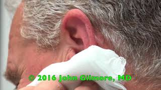 Massive Earwax Removed After 20 Years of Earwax Build-up