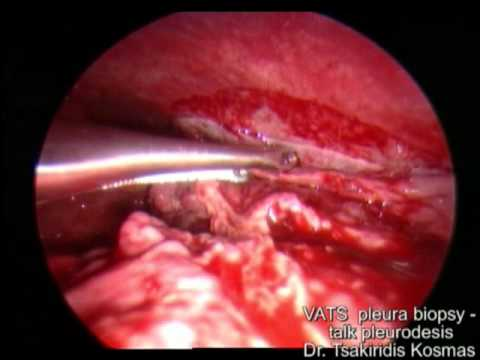 VATS pleural biopsy talk pleurodesis - YouTube