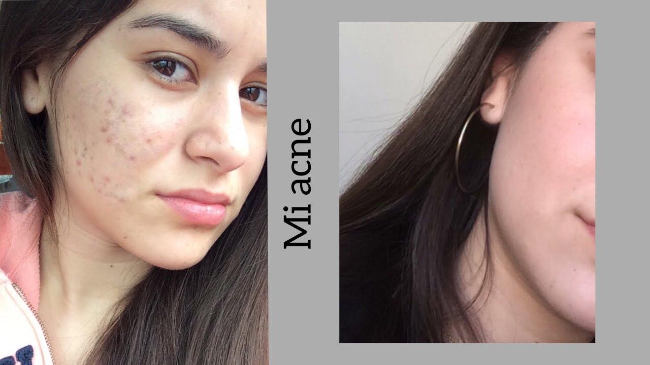 remedios caseros para el acne por hormonas