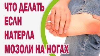 Что делать, если натерла на ногах мозоли(Причиной появления болезненных мозолей чаще всего становится неудобная обувь и небрежное отношение к..., 2016-06-02T16:03:20.000Z)