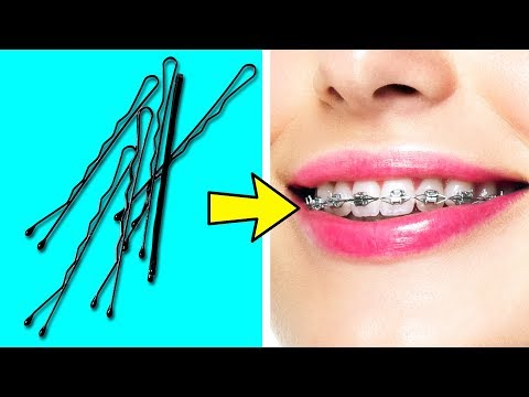 35 BRILLIANT LIFE HACKS YOU NEED TO KNOW thumbnail