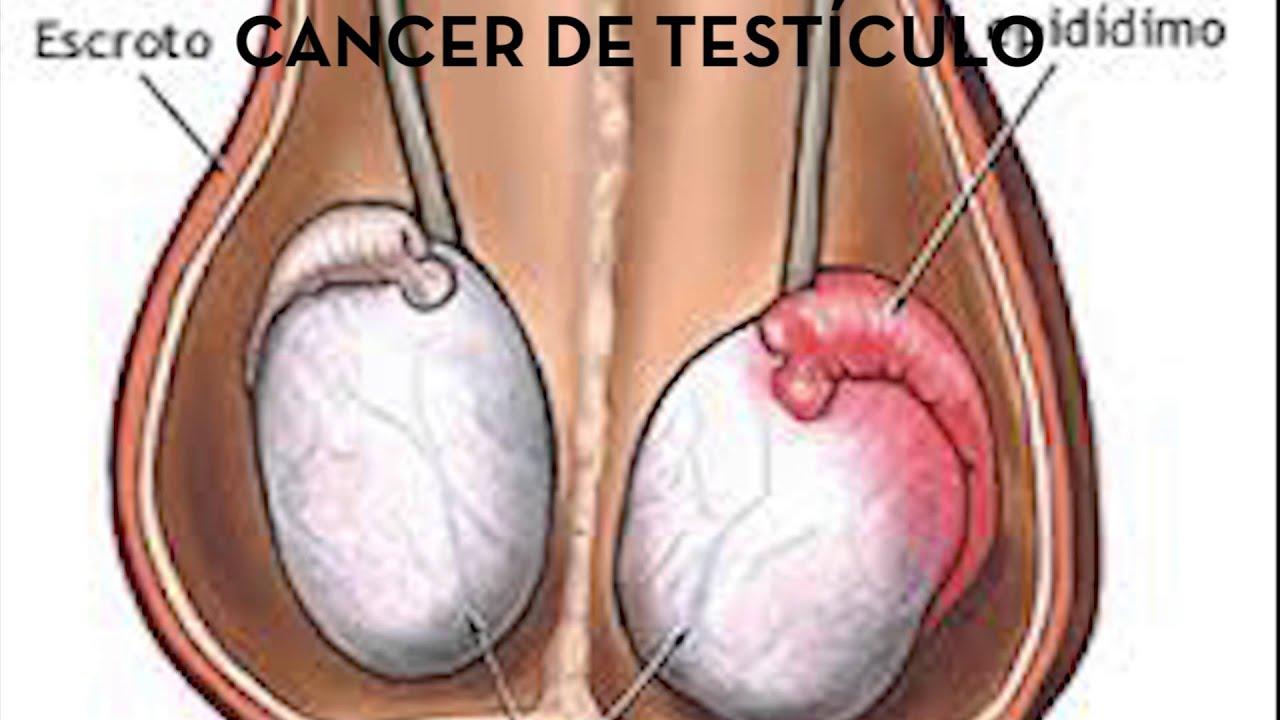 Cancer de testiculo - YouTube