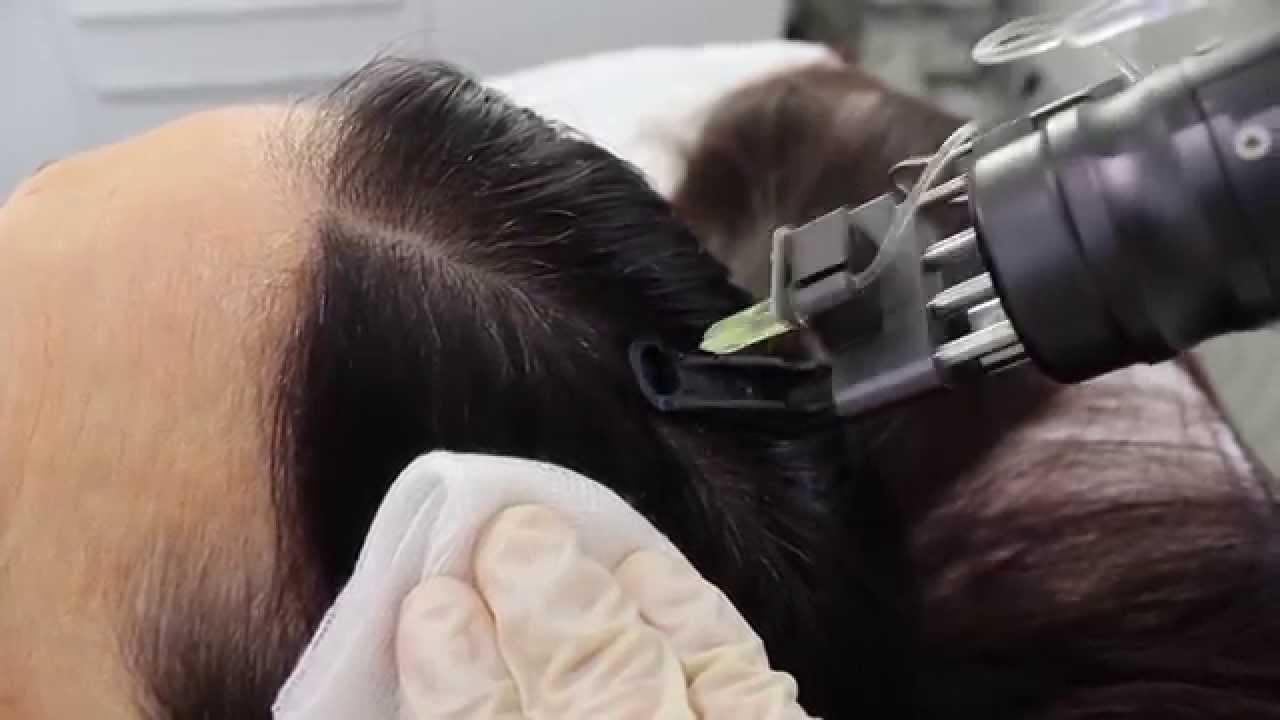 Die Maske für das Haar mit gortschizej sowohl den Hefen das Rezept als auch dem Honig