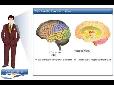 Pathophysiology Of Schizophrenia Youtube