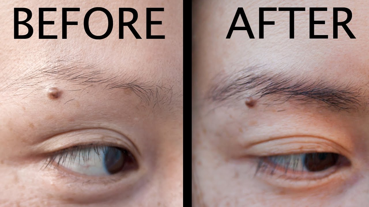 How To Grow Thicker Eyebrows Damaged From Plucking Youtube