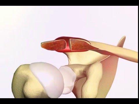 Shoulder Arthritis; Acromioclavicular Joint Arthrosis