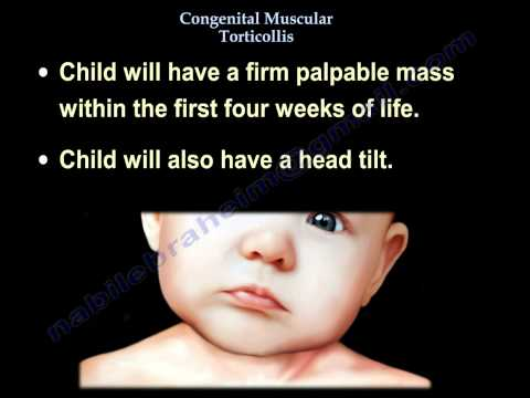 Congenital Muscular Torticollis - Everything You Need To Know - Dr. Nabil Ebraheim