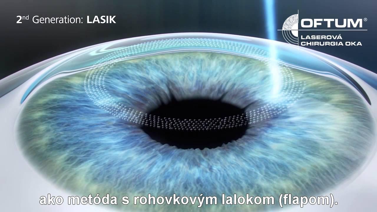 4f8251e8f Z-Lasik 6D - Oftum