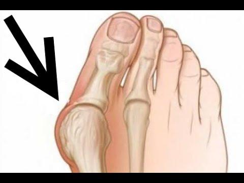 Вальгусная деформация ног виды, симптомы, лечение, массаж