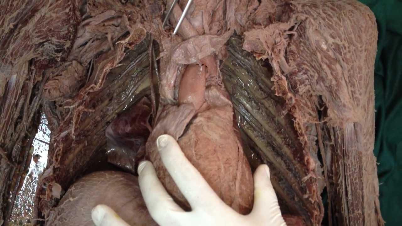 Relaciones Anatómicas del cayado Aórtico / Tronco Arterial ...