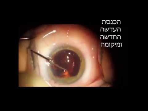 מרפאות מעין - ניתוח קטרקט בשיטת פאקו - דוקטור מודי נפתלי