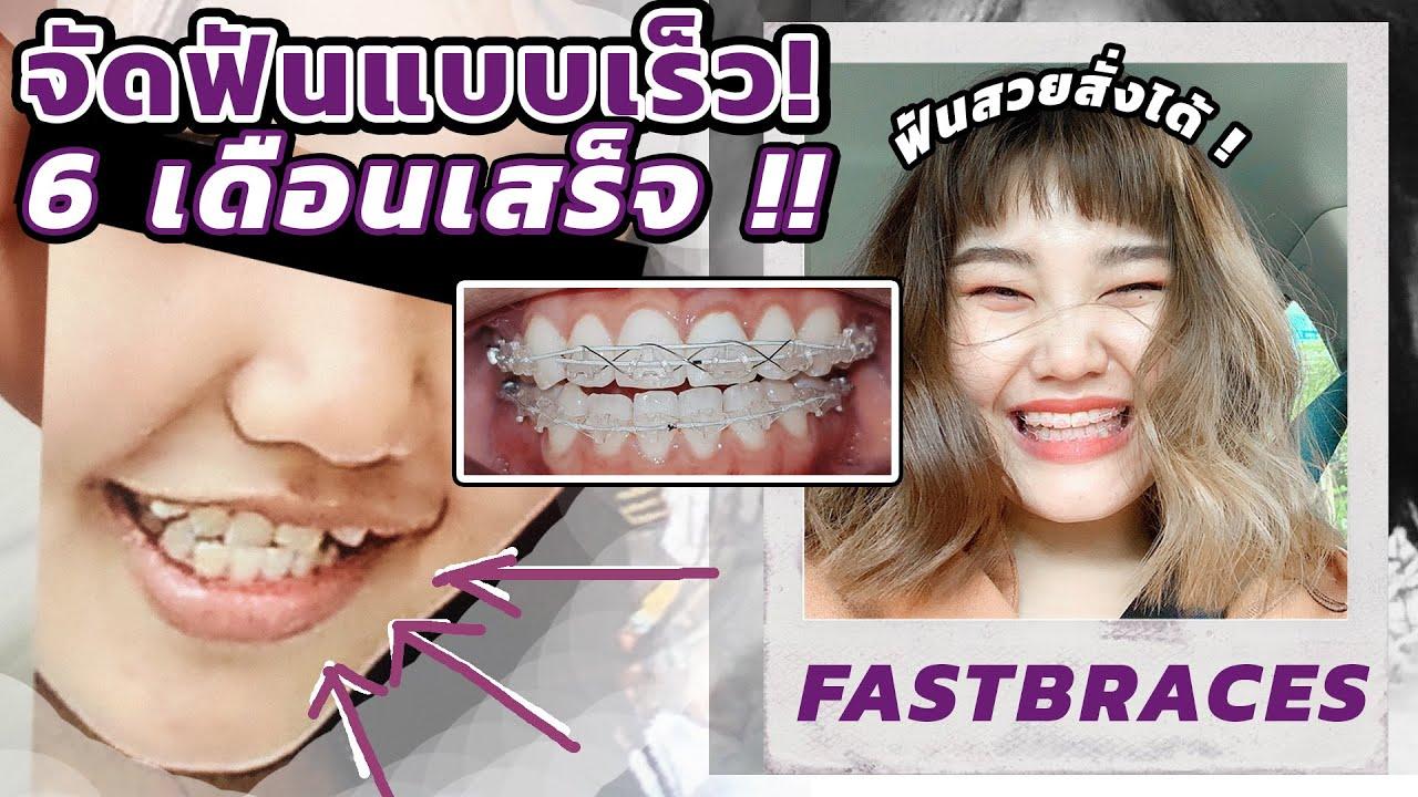 จัดฟันแบบเร็ว  6 เดือนเสร็จ !! ราคาเท่าไหร่ จัดที่ไหน ? มีคำตอบ !!  l Bowkanyarat
