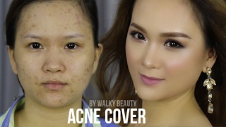 Trang Điểm Da Mụn - Acnes Cover Makeup by Walky Beauty