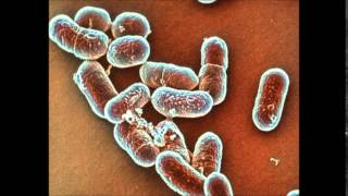 What is Listeria Infection and Its Symptoms