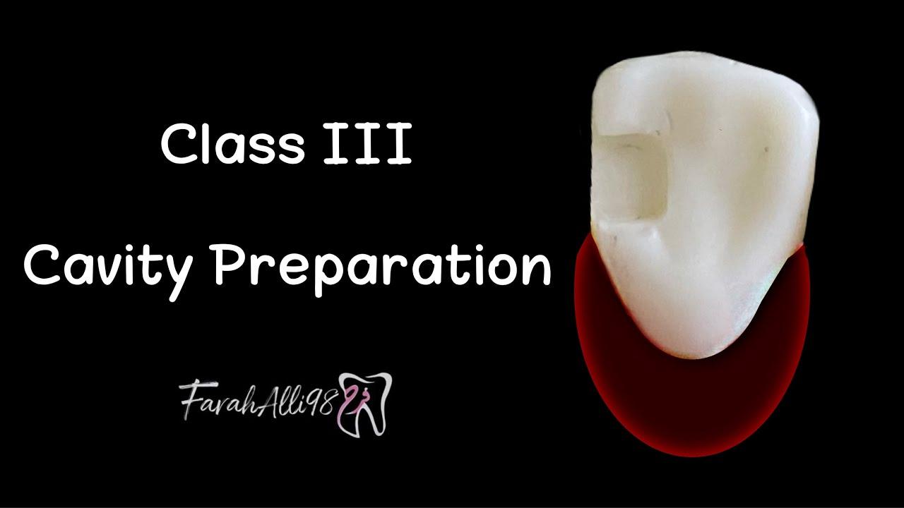 Download Class 3 Cavity preparation| Prep for Composite | فرح علي FarahAlli98