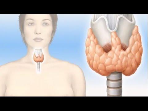 En que consiste el hipo e hipertiroidismo