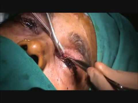 Left Eye Ptosis Surgery (Droopy Eyelid) by Oculoplastic Surgeon Dr - ptosis surgery