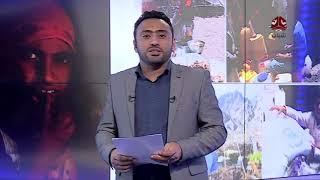 الأسرى  ..حقوق منسية وسط لهيب الحرب اليمنية المستعرة| المرصد الحقوقي - تقديم عبدالله دوبلة