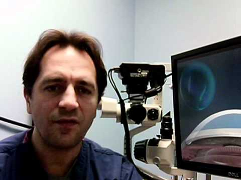 What are the risks of Ortho-k or Corneal Molding?