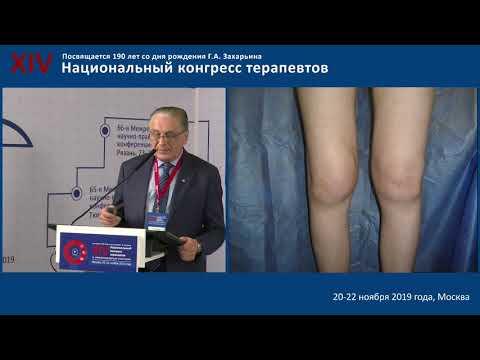 Мазуров В.И. «Ревматология для терапевтов»