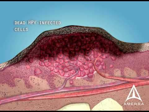 Skin Warts - 3D Medical Animation