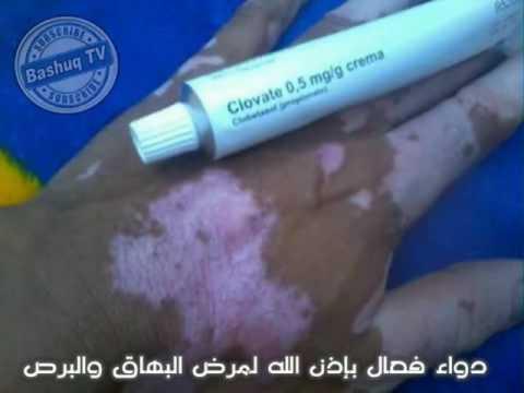 كريم فعال للعلاج البرص Clovate 0.5 mg/g crema