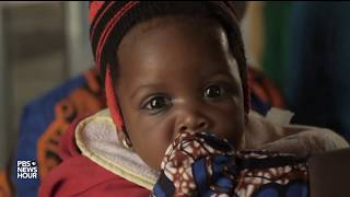 Why Nigeria has more HIV-positive infants than anywhere else