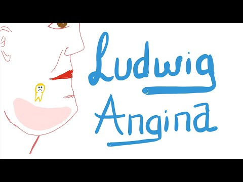 Ludwig Angina | 🚑 | Causes, Clinical Picture, Diagnosis And Management