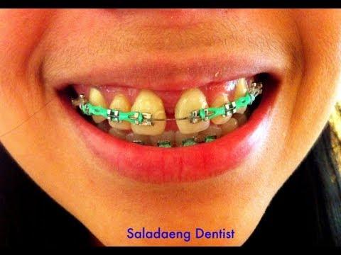ยางจัดฟันเปลี่ยนสี