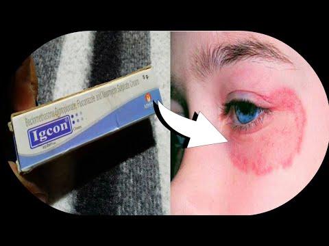Igcon Cream   चेहरे या शरीर पे Fungle या Bacterial Infection की सबसे असरदार Cream   Hindi