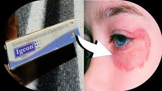 Igcon Cream | चेहरे या शरीर पे Fungle या Bacterial Infection की सबसे असरदार Cream | Hindi
