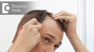 How to prevent premature male pattern baldness in young adults? - Dr. Aruna Prasad