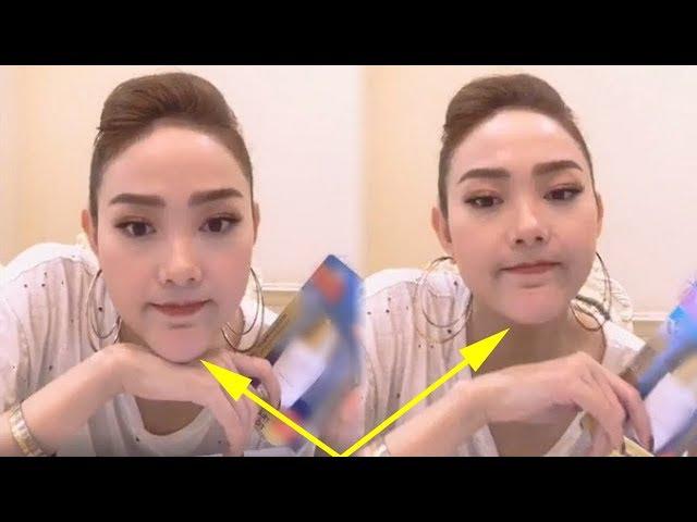 Phủ nhận dao kéo,nhưng hình ảnh mới nhất của Minh Hằng khiến ai cũng thực sự hốt hoảng