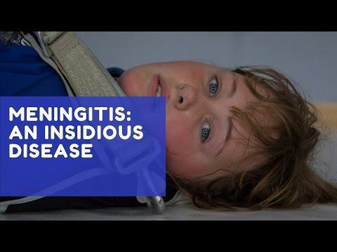 Meningitis: An Insidious Disease