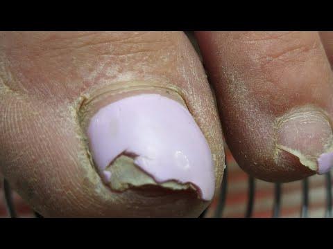 Жесть /что случилось с ногтями/педикюр пальцев